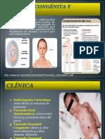 Varicela Congénita y Neonatal