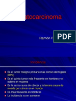 Ramon. Hepatocarcinoma