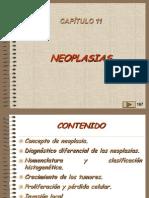 11, NEOPLASIAS 1