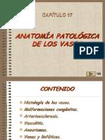 17, Patologia de Los Vasos