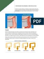 Colitis Ulcer Osa