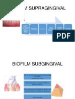 BIOFILM SUPRAGINGIVALpauli
