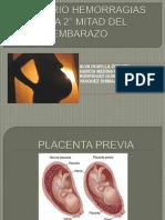 Hemorra 2mitad en Embarazo 2012