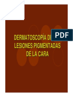 Dermatoscopia Lesiones Pigmentadas Cara