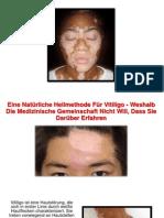 Vitiligo Selbstbräuner, Weissfleckenkrankheit Vitiligo, Weißfleckenkrankheit Ursache