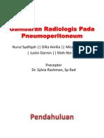 Gambaran Radiologis Pada Pneumoperitoneum