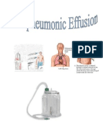 Parapneumonic Effusion- Case Study Adult I - Without Author