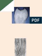 Abordarea Clinică a Spaţiului Endodontic În Funcţie de Particularităţile Morfo-funcţionale Ale Fiecărui Dinte