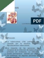 expo tuberculosis.pptx