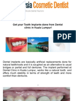 Get Your Tooth Implants Done From Dental Clinic in Kuala Lumpur!