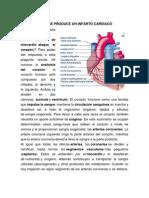 Cómo Se Produce Un Infarto Cardiaco