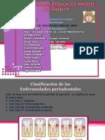 Clasificacion de Las Enferemedades Periodontales (2)
