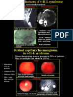 Retinal Haemangioma