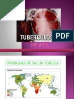 Tuberculosis Infantil[1]