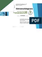 Eletroencefalograma2