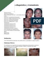 Acne Nuevo Diagnostico Tratamiento