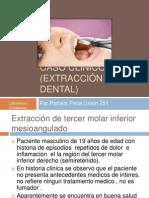 Caso Clinico (Extracción Dental) 1