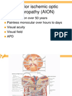 AION Anterior Ischemic Optic Neuropathy AION