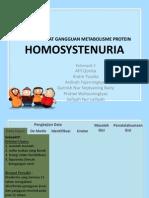 homosistinuria