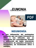 NEUMONIA Pediatria