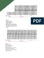 ECG Practice