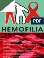 180608181-hemofilia