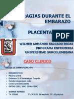 25249562 Placenta Previa