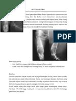 Osteosarcoma.doc