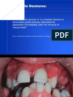 21. Immediate Denture