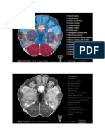 Caudal Midbrain Diencephalon Junction Colliculus