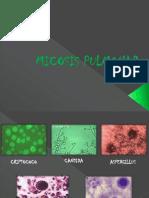 micosispulmonar-131118215828-phpapp01