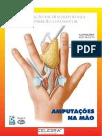 Amputações Na Mão