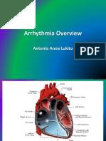 Arrhythmia Overview