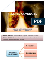 NEUMO-TUMORES PULMONARES