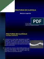 Fracturas de Clavicula