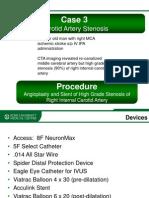 WLNC 2013 Follow Up Case 3 - Carotid Artery Stenosis | Demetrius Lopes, MD