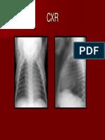 Vascular Rings Slings