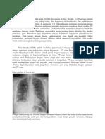 Metastasis Paru Lengkap