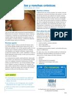 EL Hives Patent Spanish