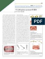 Lim plate system
