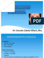 09 Rinosinusitis Fungica