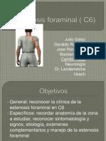estenosis foraminal c6