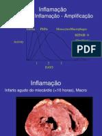 09b Infarto Do Miocardio(Evolutivo)