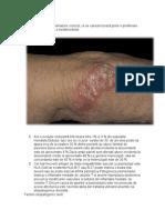 Dermato Psoriazis, Lichen