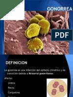 Gonorrea Exposicion