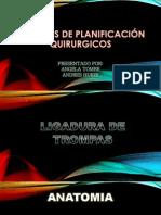 Métodos de Planificación Quirurgicos