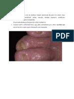 Dermatologie - Eczeme