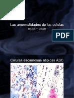 celulas escamosas atipicas