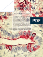 the WHO classification of pancreatic tumors