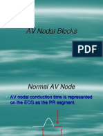 AV Nodal Blocks